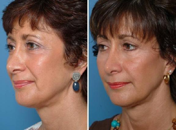 Aesthetic Surgery Ctr Face Spa Anurag Agarwal Md 11181 Health